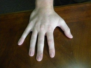 Tulsa Attorneys-Workers Comp-Hand Injuries-